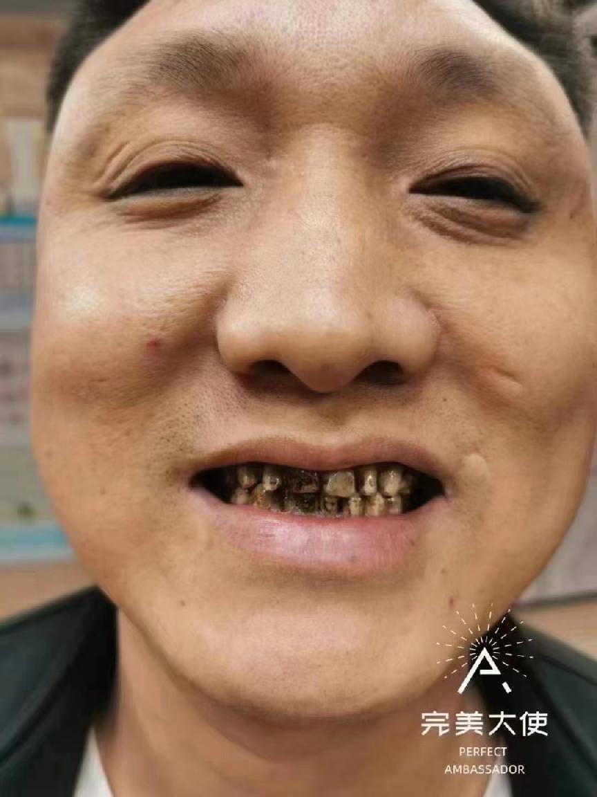 牙齿黄、黑,不整齐2小时轻松美白